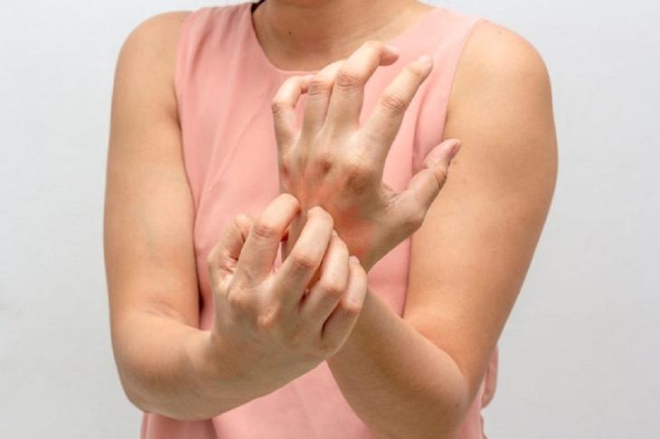 Những lưu ý giúp ngăn ngừa vảy nến tái phát