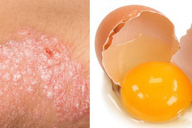 Tìm hiểu cách chữa vẩy nến bằng lòng đỏ trứng gà được nhiều người áp dụng