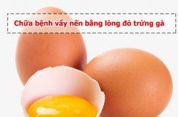 Cách chữa vẩy nến bằng lòng đỏ trứng gà là phương pháp trị bệnh an toàn hiện nay