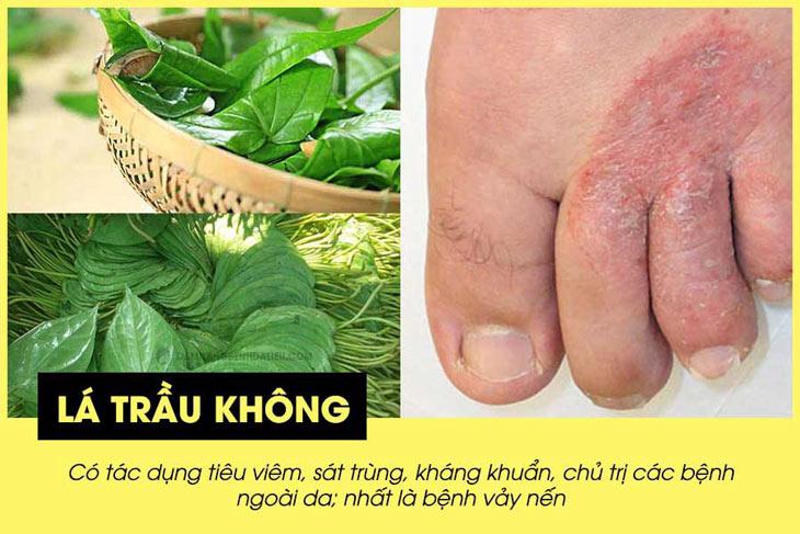 Lá trầu không có nhiều công dụng trong chữa trị bệnh vảy nến