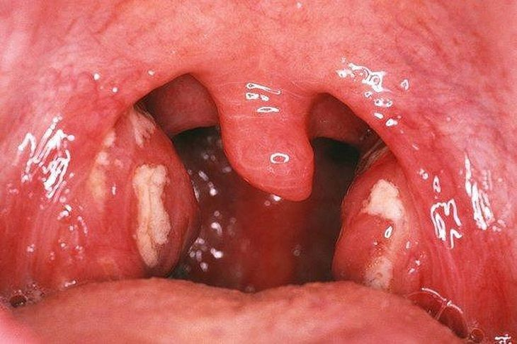 Chữa viêm amidan hốc mủ bằng thuốc nam sẽ giảm nguy cơ xảy ra các biến chứng