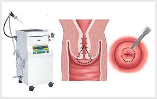 Chữa viêm lộ tuyến cổ tử cung có tốt không?