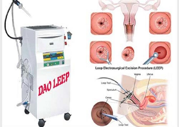 Điều trị viêm lộ tuyến cổ tử cung bằng Leep hiệu quả cao, thời gian phục hồi nhanh