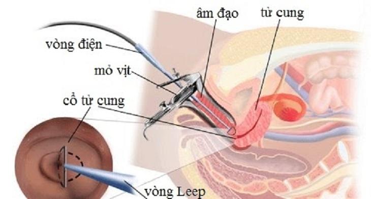 Chữa viêm lộ tuyến bằng Leep là phương pháp trị bệnh hiệu quả cao