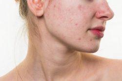Da nhiễm Corticoid - Dấu hiệu và cách phục hồi da bị nhiễm corticoid đúng cách