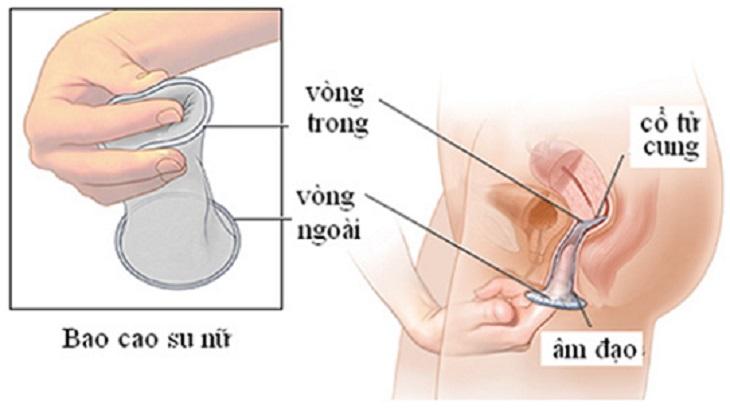 Chảy máu có thể do móng tay cọ xát vào thành âm đạo khi chị em không dùng bao cao su bao bọc
