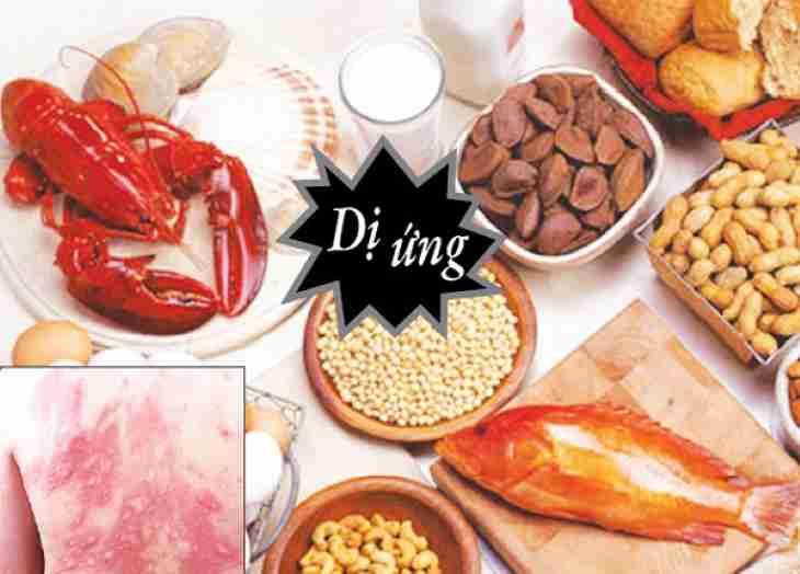 Ăn những thực phẩm dễ bị dị ứng cũng có thể khiến da bị ngứa khắp người không rõ nguyên nhân