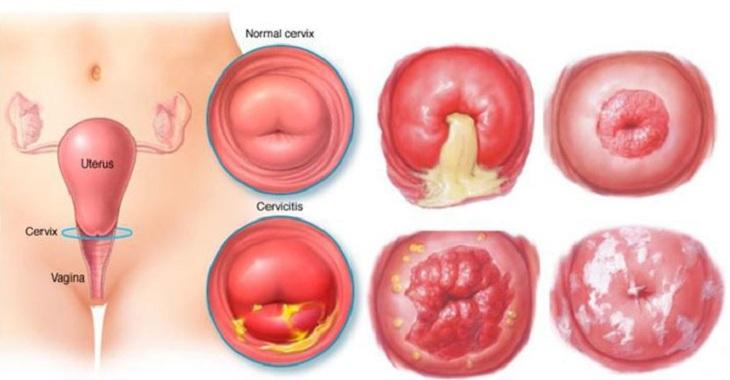 Thời gian điều trị viêm lộ tuyến cổ tử cung là thắc mắc của nhiều người bệnh