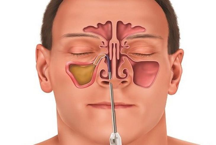Mổ viêm xoang mũi để khắc phục những biến chứng do bệnh gây ra