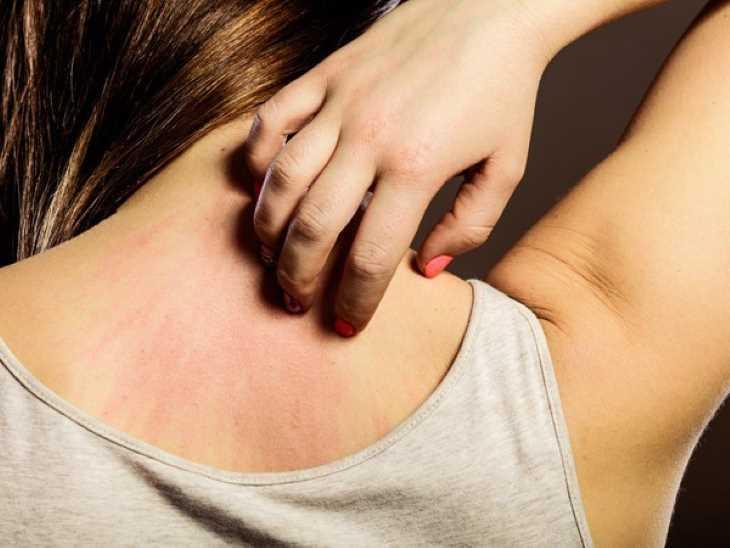 Người bệnh tuyệt đối không dùng tay gãi khi ngứa 2 bên háng
