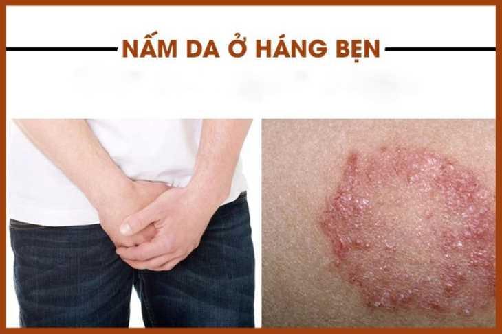 Nấm háng là một trong những nguyên nhân khiến da nổi mẩn, ngứa tại 2 bên háng