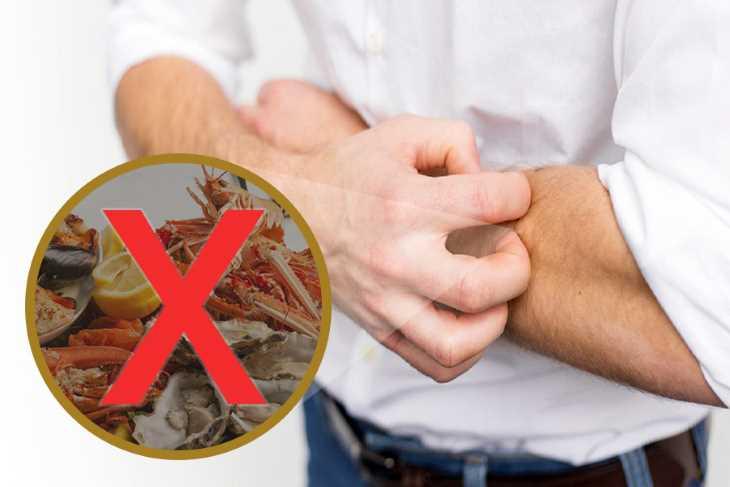 Khi bị ngứa da vào mùa hè, người bệnh nên tránh xa các loại hải sản