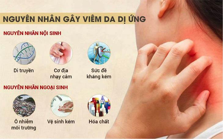 Nguyên nhân gây viêm da dị ứng