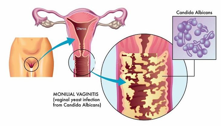 Tùy từng nguyên nhân gây bệnh do vi khuẩn, nám hay trùng roi bác sĩ xây dựng phác đồ điều trị viêm âm đạo phù hợp