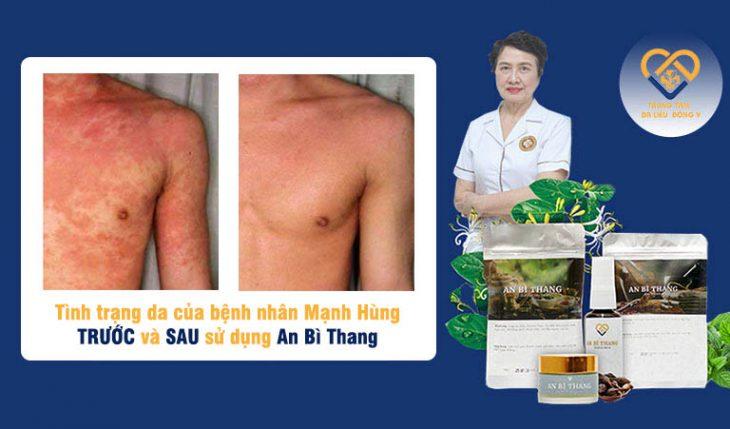 Bệnh nhân Mạnh Hùng tự tin với làn da sau khi điều trị dứt điểm viêm da cơ địa tại Trung tâm