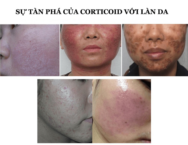 Lạm dụng Corticoid gây nên những tác hại khủng khiếp với làn da