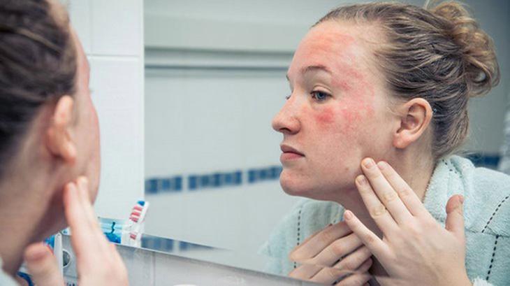 Cai nghiện Corticoid cần thời gian để da thích ứng