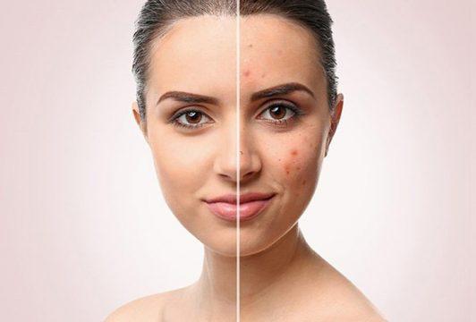 Mách bạn cách điều trị và phục hồi da nhiễm Corticoid hiệu quả nhất