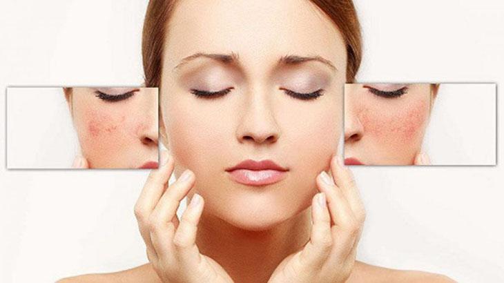 Thải độc da đúng cách để da nhanh chóng phục hồi