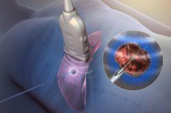 phương pháp rfa điều trị viêm lộ tuyến