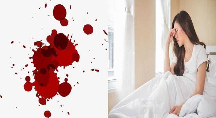 Rong kinh băng huyết có thể gây thiếu máu ảnh hưởng nghiêm trọng tới sức khỏe chị em