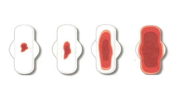 Rong kinh băng huyết là tình trạng không hiếm gặp ở nhiều chị em phụ nữ