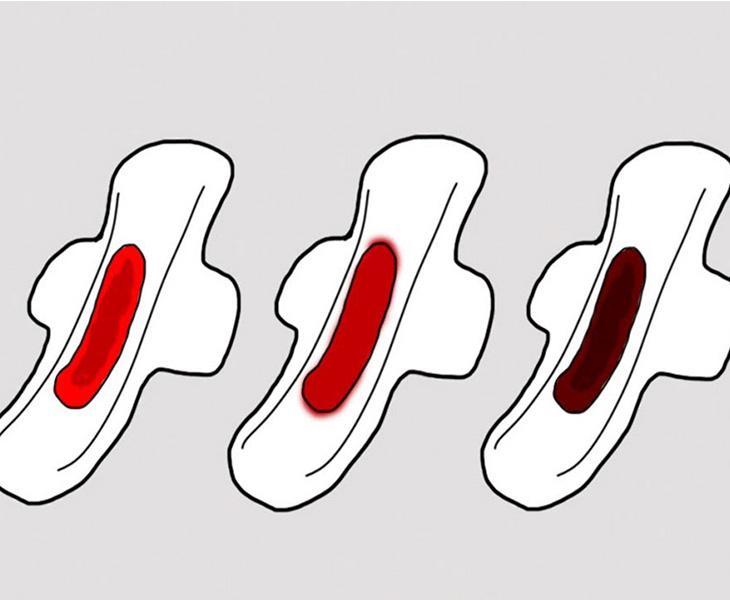 Rong kinh ra máu đen có thể là dấu hiệu cảnh báo một vấn đề về sức khỏe sinh sản của chị em phụ nữ
