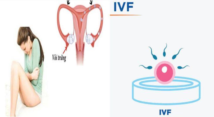 Tắc vòi trứng có làm IVF được không là thắc mắc của hầu hết người bệnh
