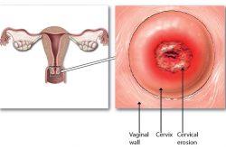 Thời gian điều trị viêm lộ tuyến cổ tử cung bao lâu thì khỏi?