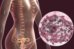Viêm âm đạo do gardnerella vaginalis: Biểu hiện & Cách phòng bệnh