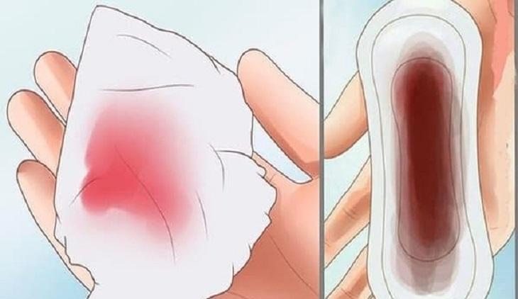 Viêm âm đạo ra máu ít hơn và không kéo dài như thời kỳ hành kinh