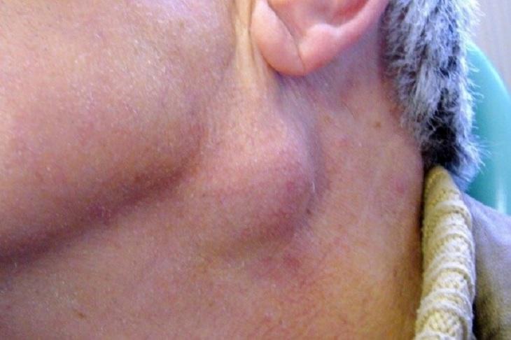 Viêm amidan có nổi hạch ở cổ không là một trong những nguyên nhân gây ung thư vòm họng