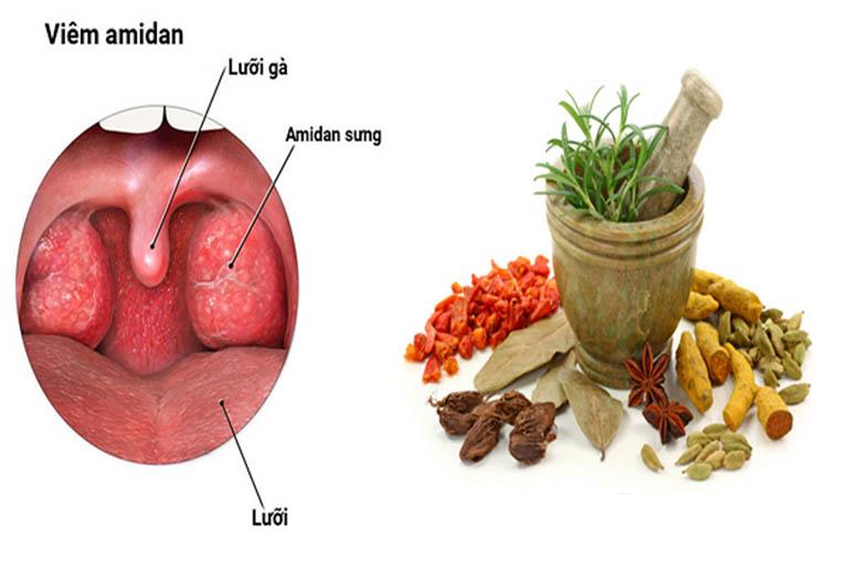 Sử dụng các bài thuốc Đông y để chữa bệnh viêm amidan ở trẻ