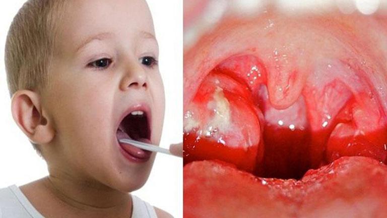 Đa số trẻ bị viêm amidan ở giai đoạn cấp tính