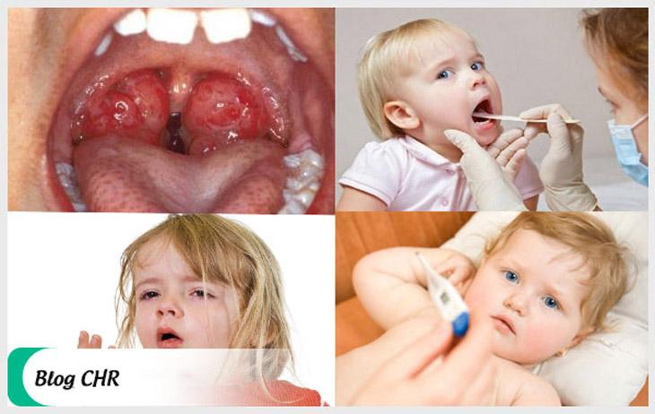 Ho, sốt, sưng họng là những dấu hiệu bệnh viêm amidan ở trẻ em