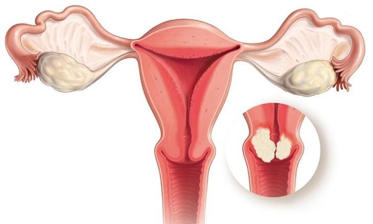 Viêm cổ tử cung mãn tính là tình trạng nặng của viêm cổ tử cung giai đoạn đầu không được điều trị kịp thời