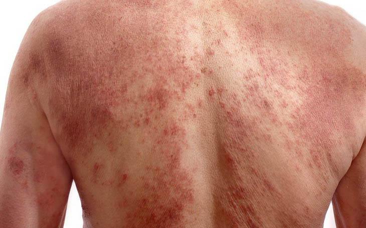 Viêm da dị ứng bị bội nhiễm