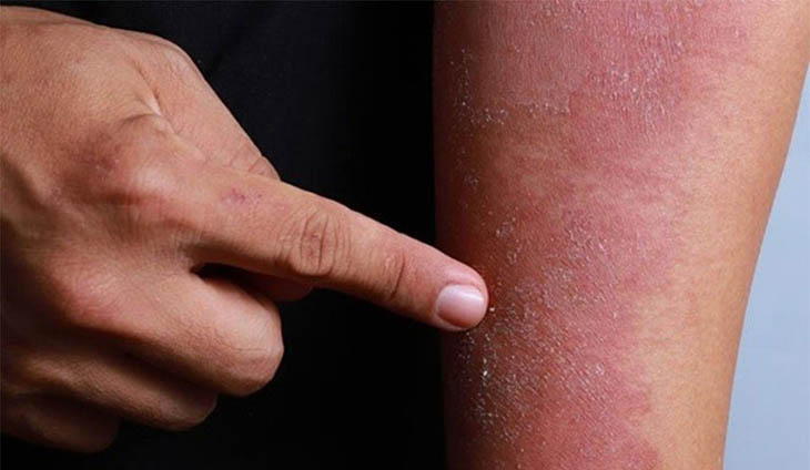 Viêm da dị ứng nặng có thể để lại sẹo trên da