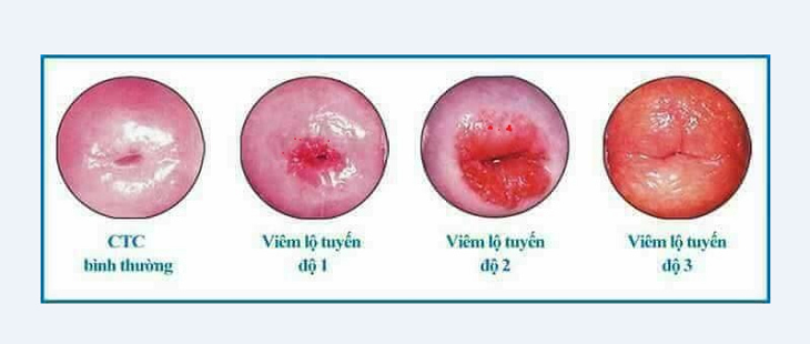 Hình ảnh viêm lộ tuyến độ 3, độ 2, độ 1