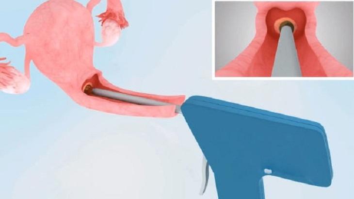 Phương pháp áp lạnh chữa viêm lộ tuyến độ 3 an toàn với phụ nữ chưa sinh nở