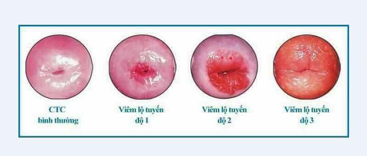 Viêm lộ tuyến cổ tử cung độ 4 thực chất là mức độ nghiêm trọng của viêm lộ tuyến cấp 3