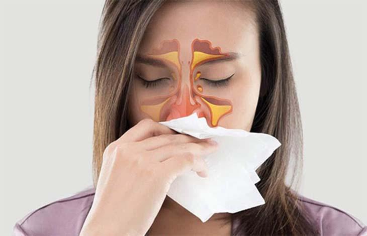 Viêm họng mạn tính có thể gây biến chứng viêm xoang