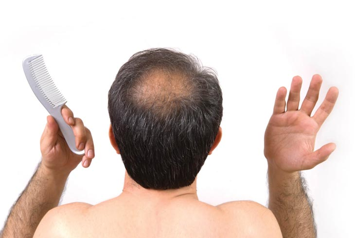Bệnh viêm nang lông làm tăng nguy cơ hoi đầu