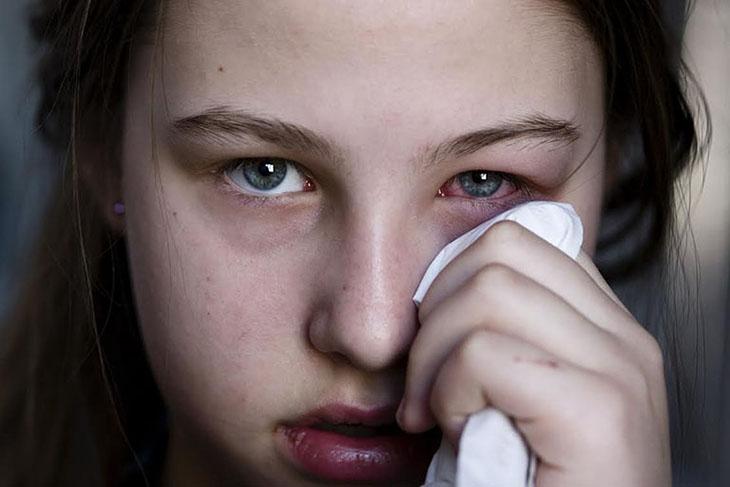Tìm hiểu về viêm xoang biến chứng mắt