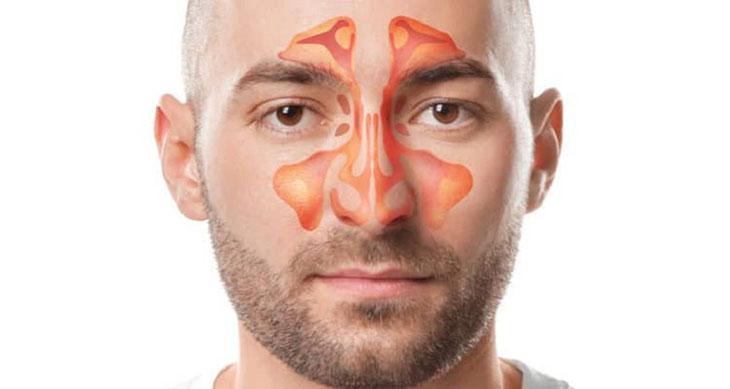 Các biến chứng liên quan đến mắt khi bị viêm xoang cấp tính