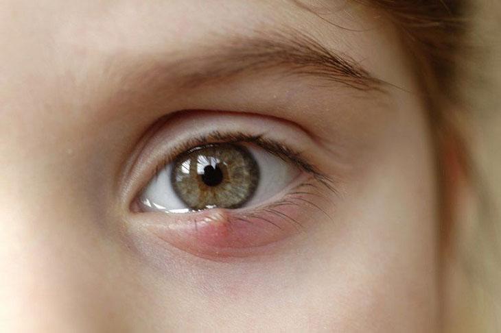 Biến chứng lồi nhãn cầu thường gặp ở trẻ em bị viêm xoang