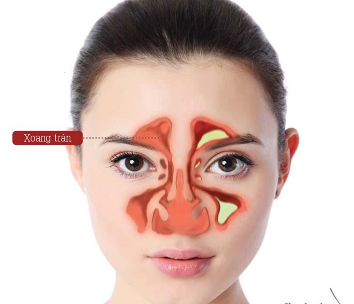 Bệnh viêm xoang trán có thể gây nhiều biến chứng nguy hiểm