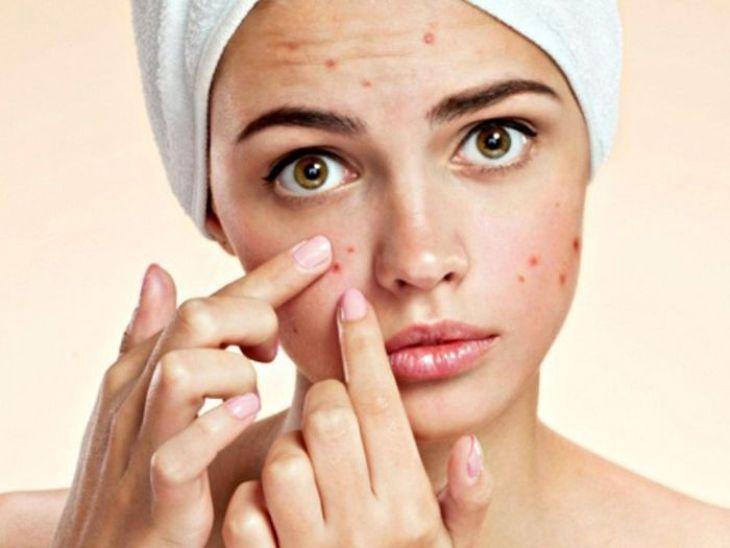 Da mặt bị ngứa và nổi mụn thông tin cần biết