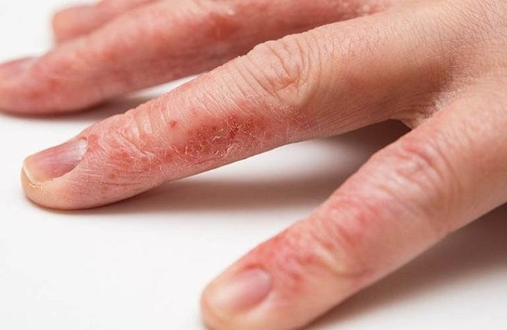 Tiếp xúc với các hóa chất độc hại cũng có thể khiến bạn bị chàm hóa