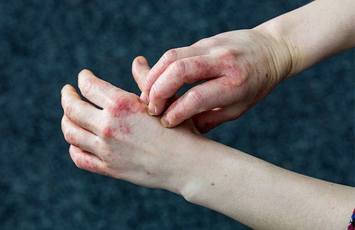Bệnh chàm hóa khiến bàn tay nổi mẩn đỏ, ngứa ngáy, vùng da xù xì khô ráp